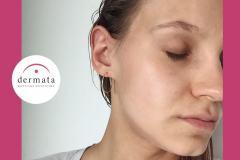 5-BB-GLOW-mezoterapia-wroclaw