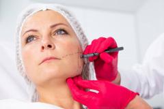 leczenie-bruksizmu-wroclaw-dermata-3