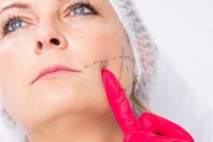 leczenie-bruksizmu-wroclaw-dermata-4