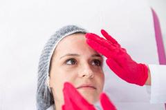 usuwanie-zmarszczek-wroclaw-dermata-5